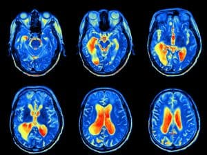 New Study Links Traumatic Brain Injury and Growth Hormone Deficiency